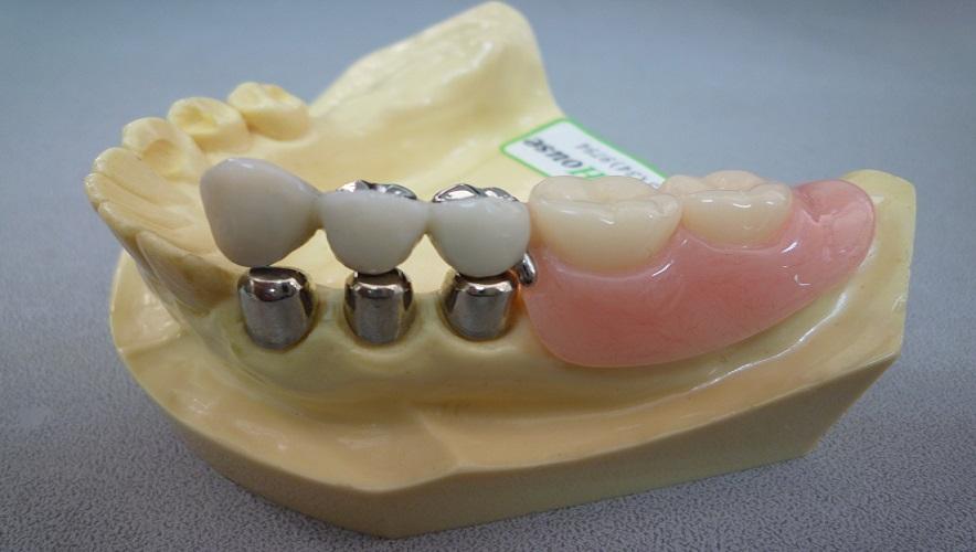 Japan Dental Tech Center